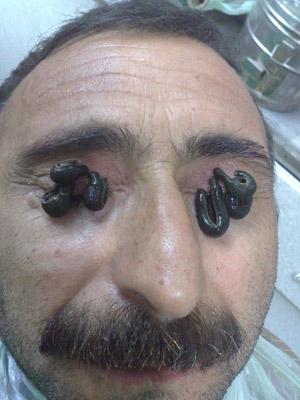 عکس درمان واریکوسل با زالو